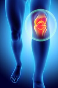 image of knee injury